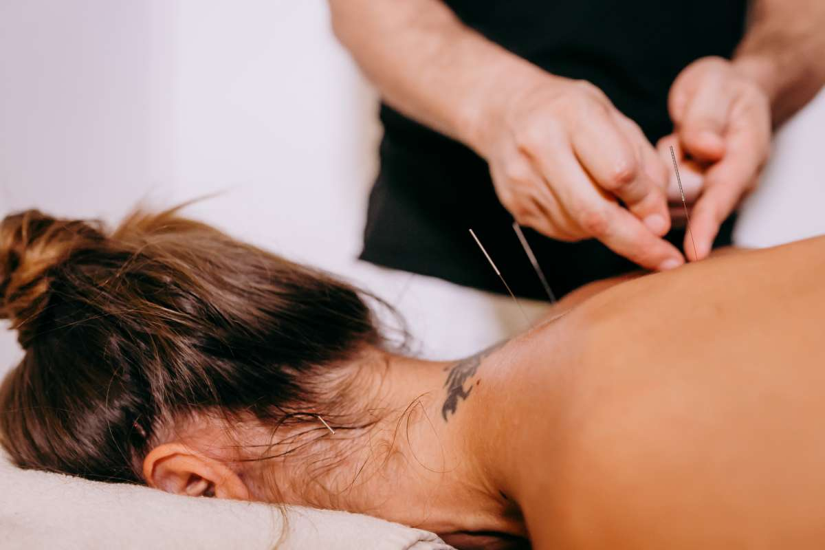woman receives acupuncture therapy
